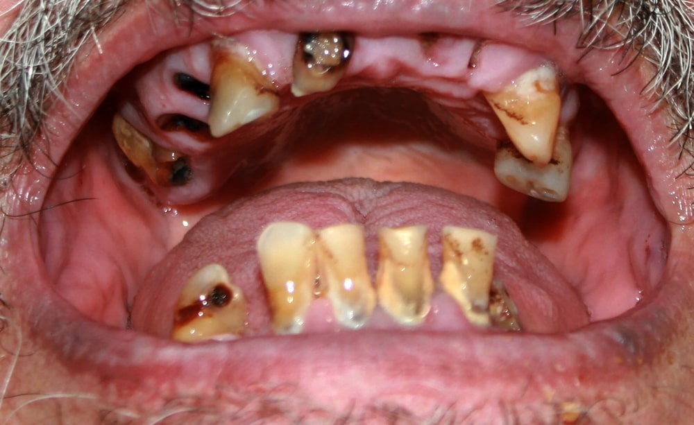Meth Mouth and Other Signs of Meth Abuse
